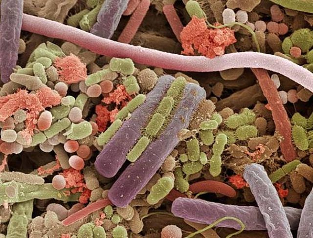 Bacteria on a human tongue